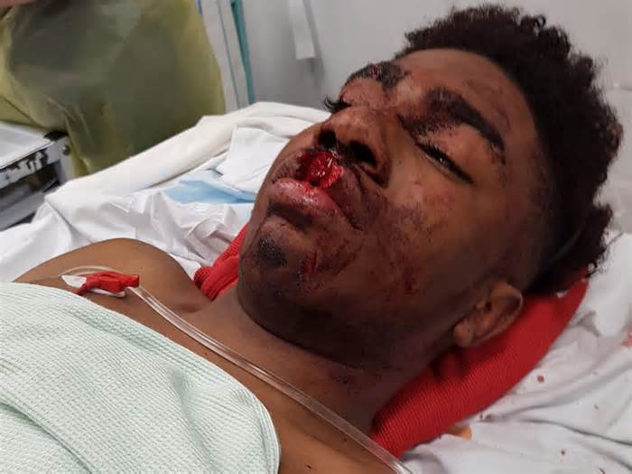 terrell decosta burton jones London Police Under Fire After Teen Is Left With Severe Injuries During Stop